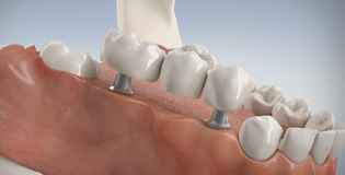 Implantatgetragene Bruecke